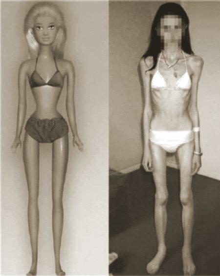 Eine Barbie-Puppe und eine richtige Frau mit beinahe genau den gleichen Proportionen. Ein sehr gruseliges Bild, denn die Frau sieht schrecklich aus.
